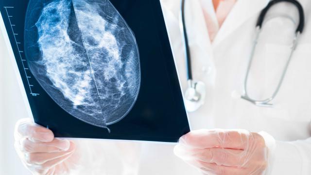เครื่อง Digital Mammogram